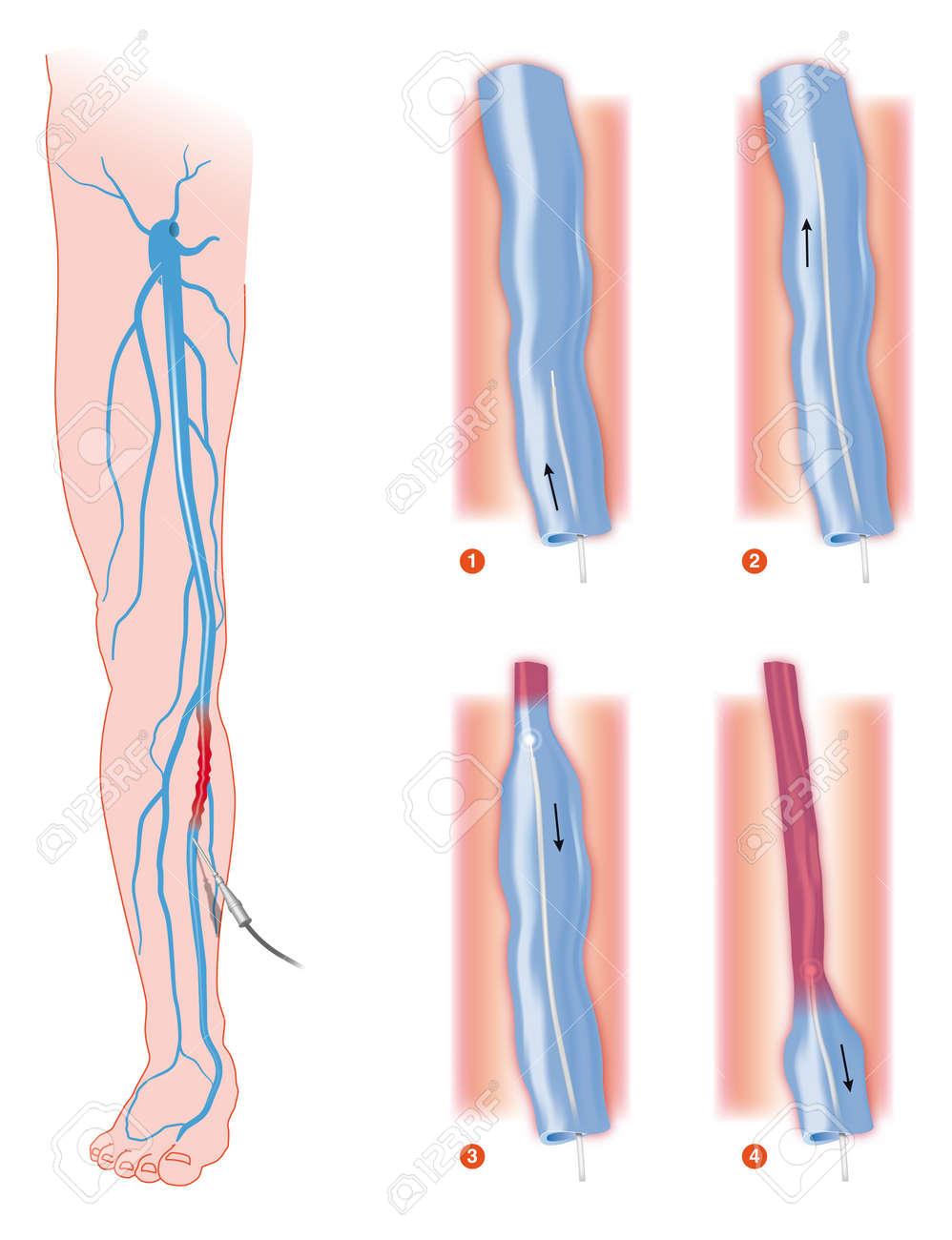 endovenous laser treatment varicose vein ablation Stock Photo - 16455963