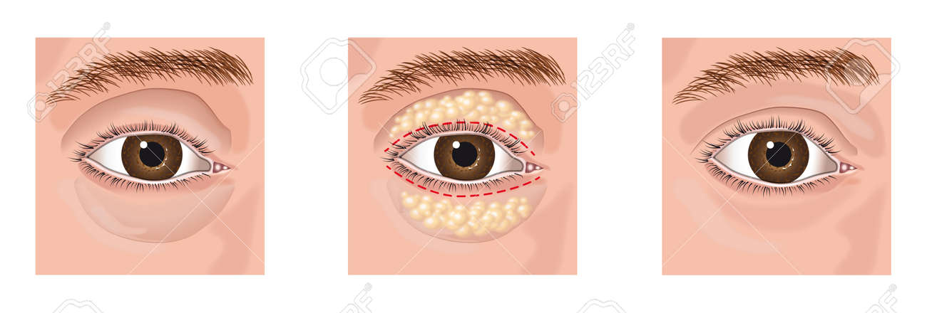 closeup of a surgery lifting on eye aesthetic blepharoplasty Stock Vector - 16455966