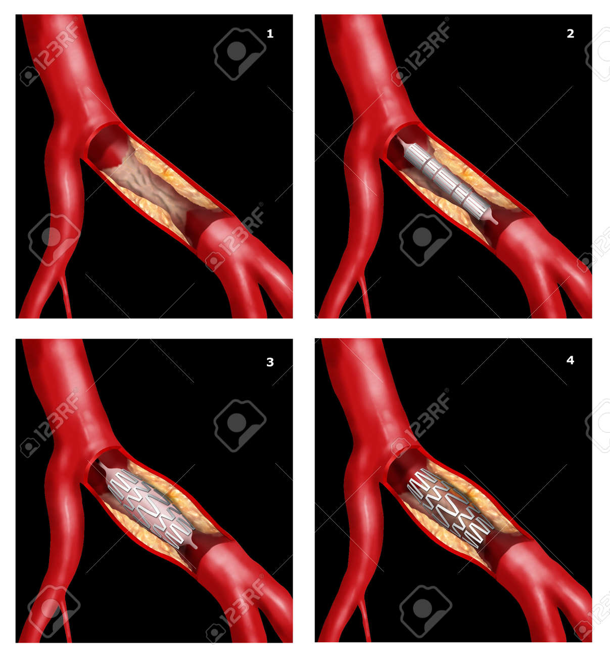 coronary stent surgical intervention in cardiothoracic technique Stock Photo - 16455971