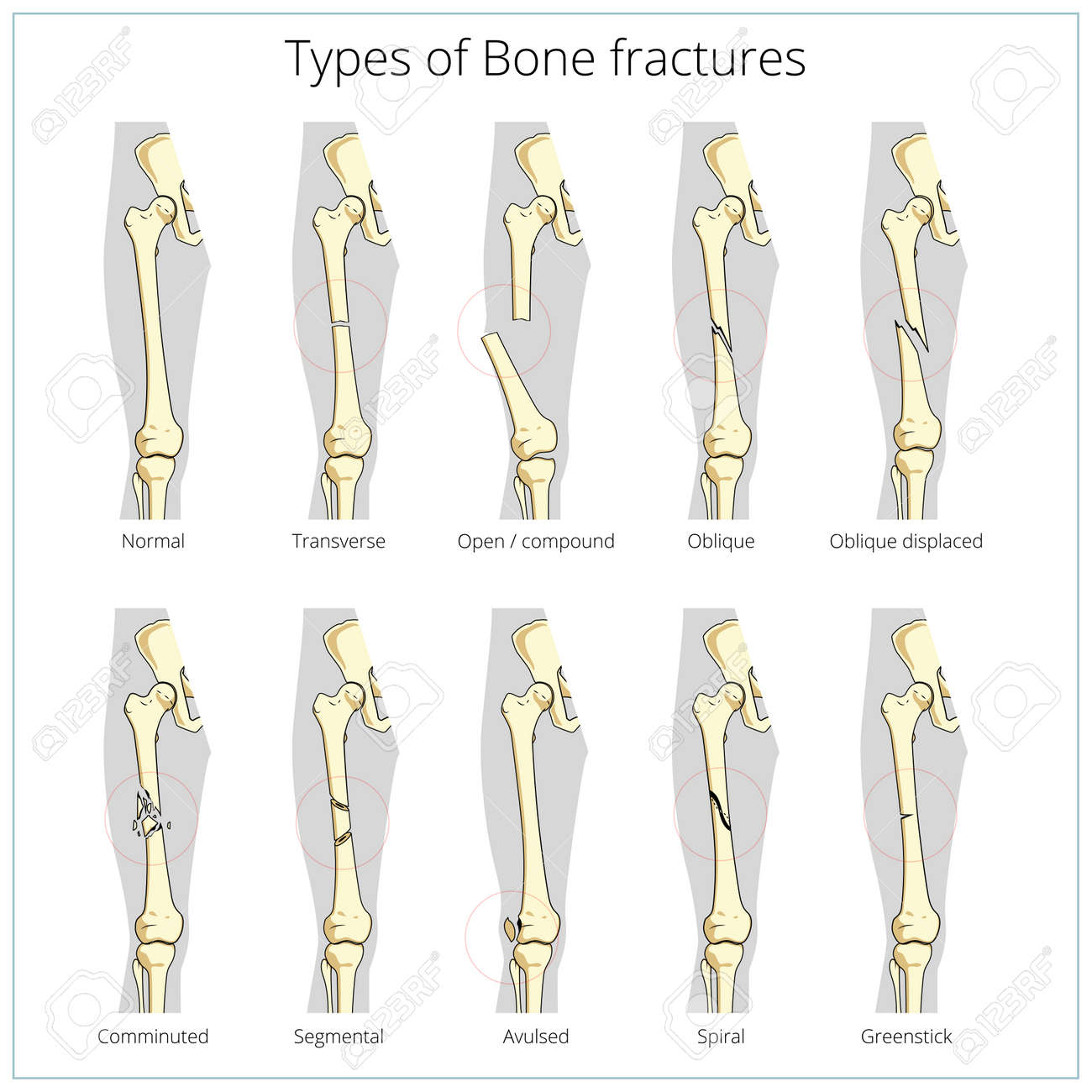 Tipos De Fracturas óseas Anatomía Esqueleto Médico Ilustración ...
