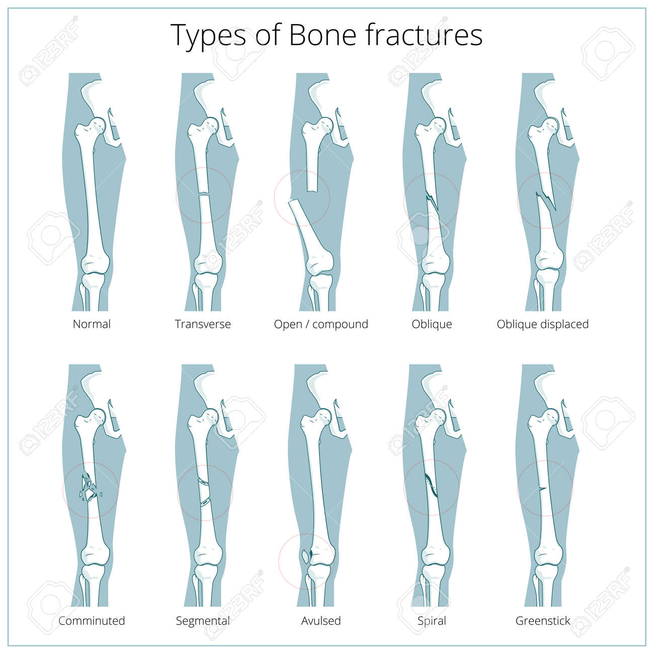 Types Of Bone Fractures Medical Skeleton Anatomy Educational Stock