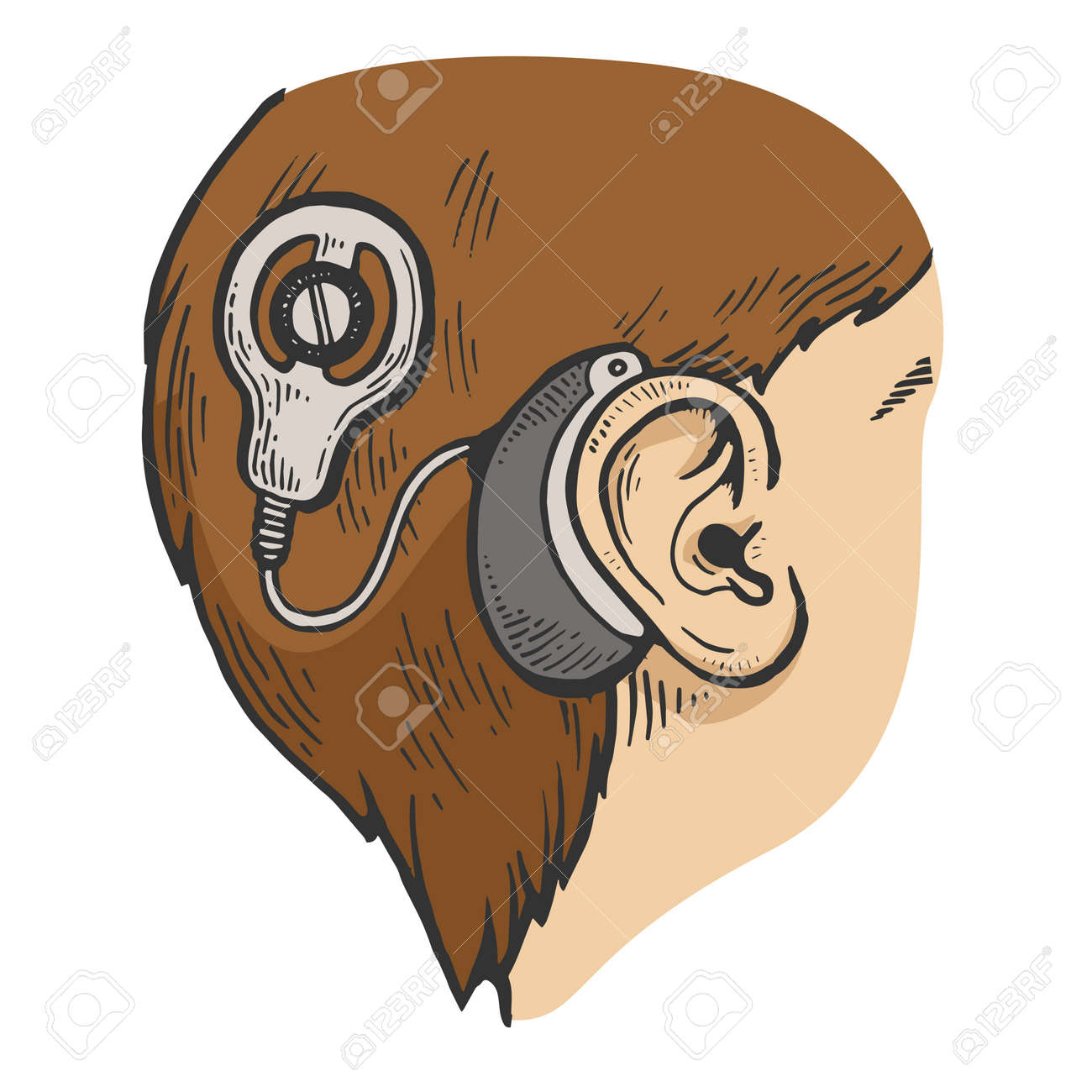 Cochlear implant on child head color sketch engraving vector illustration. Scratch board style imitation. Black and white hand drawn image. - 128502764