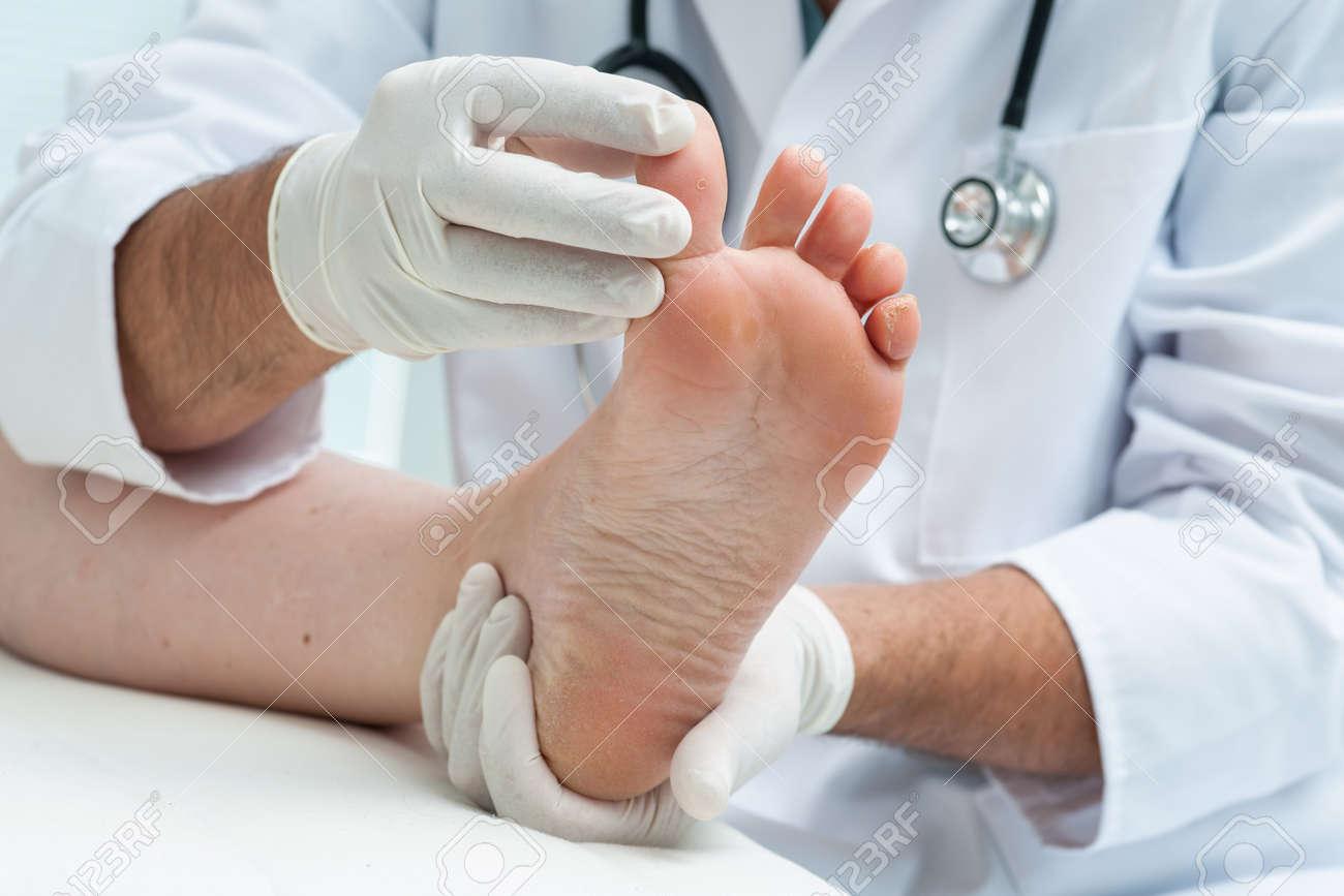 e5e197ad29c Docteur dermatologue examine le pied sur la présence d athlètes pied Banque  d images