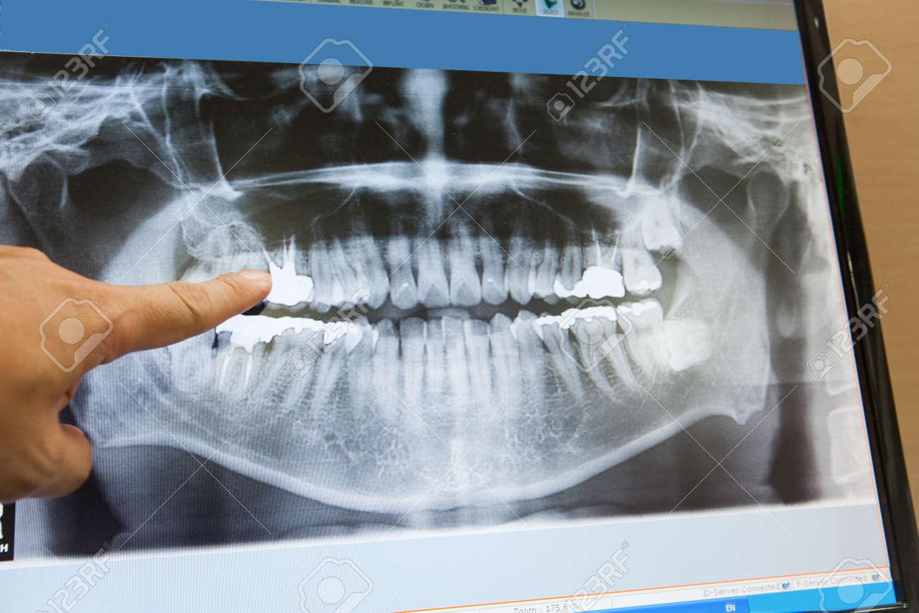 Panorámica Película De Rayos X Dental Para El Dentista Fotos ...