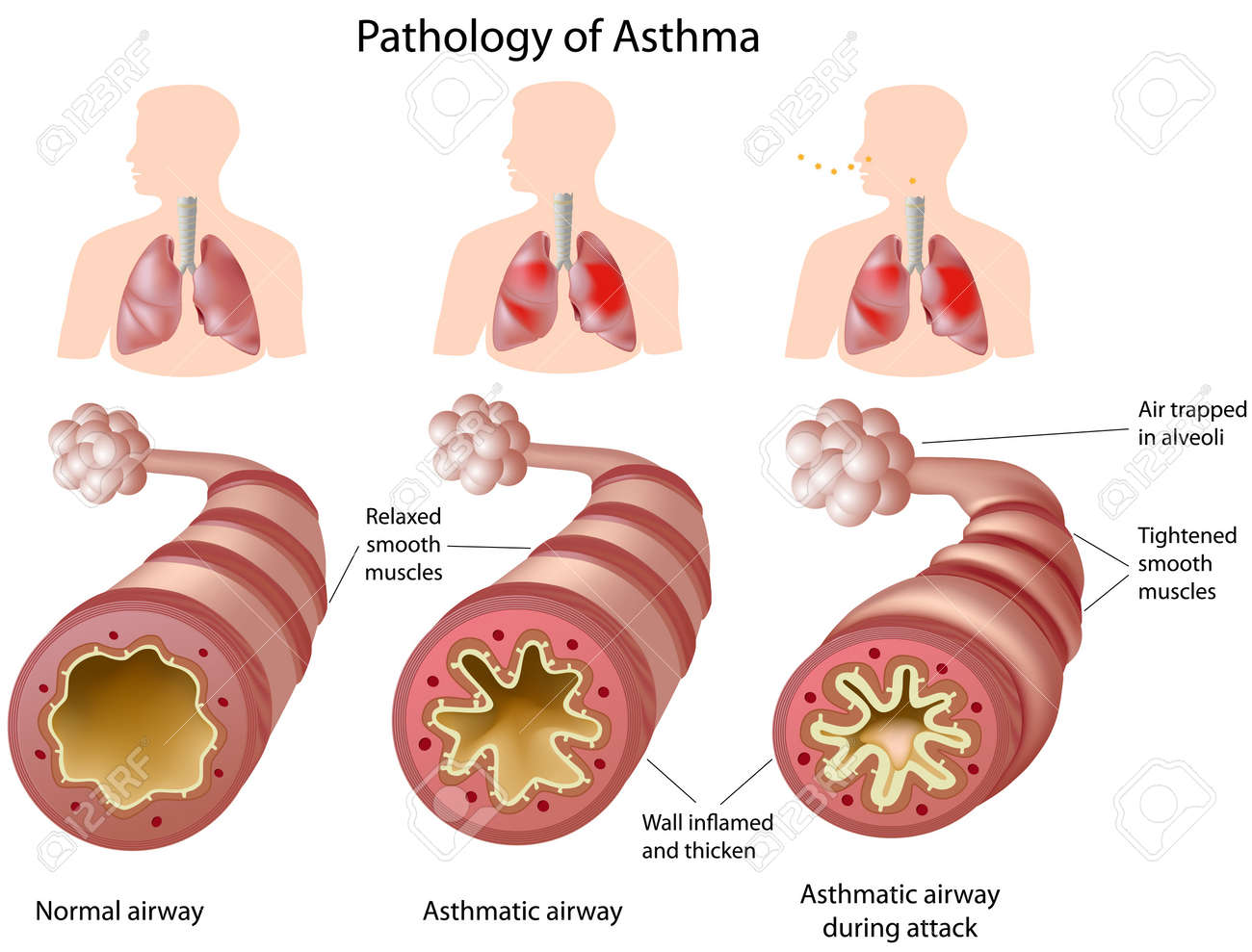 Anatomy Of Asthma, Eps8 Royalty Free Cliparts, Vectors, And Stock ...