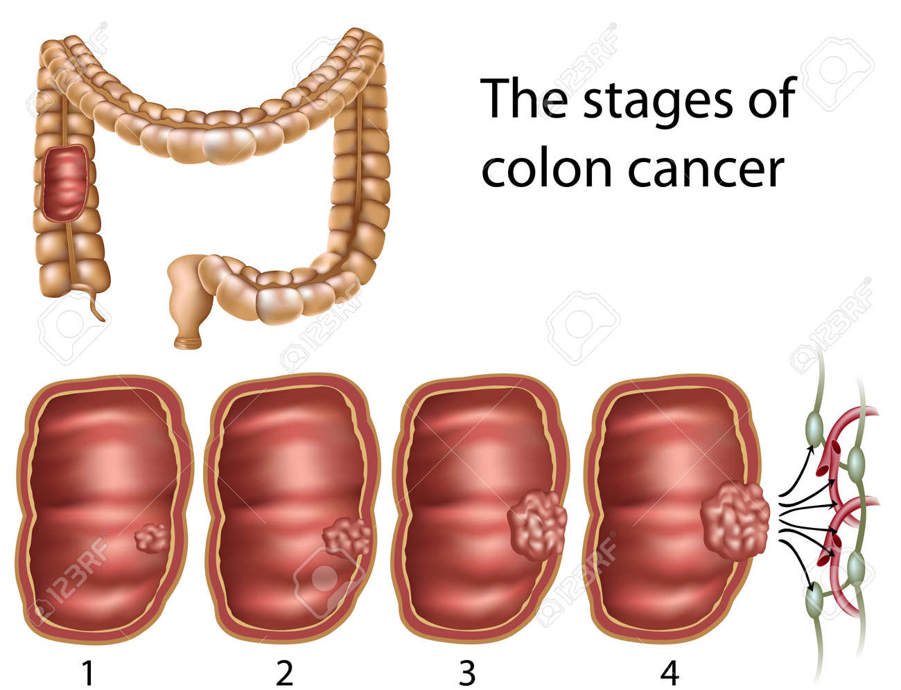 Colon Cancer, Eps8 Royalty Free Cliparts, Vectors, And Stock ...