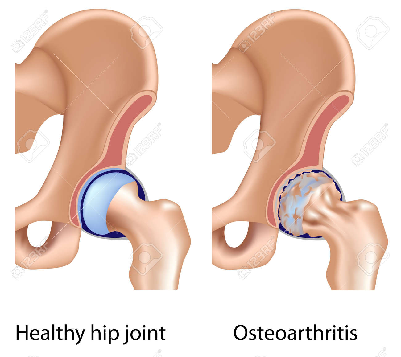 Osteoarthritis of hip joint, eps8 Stock Vector - 11122404