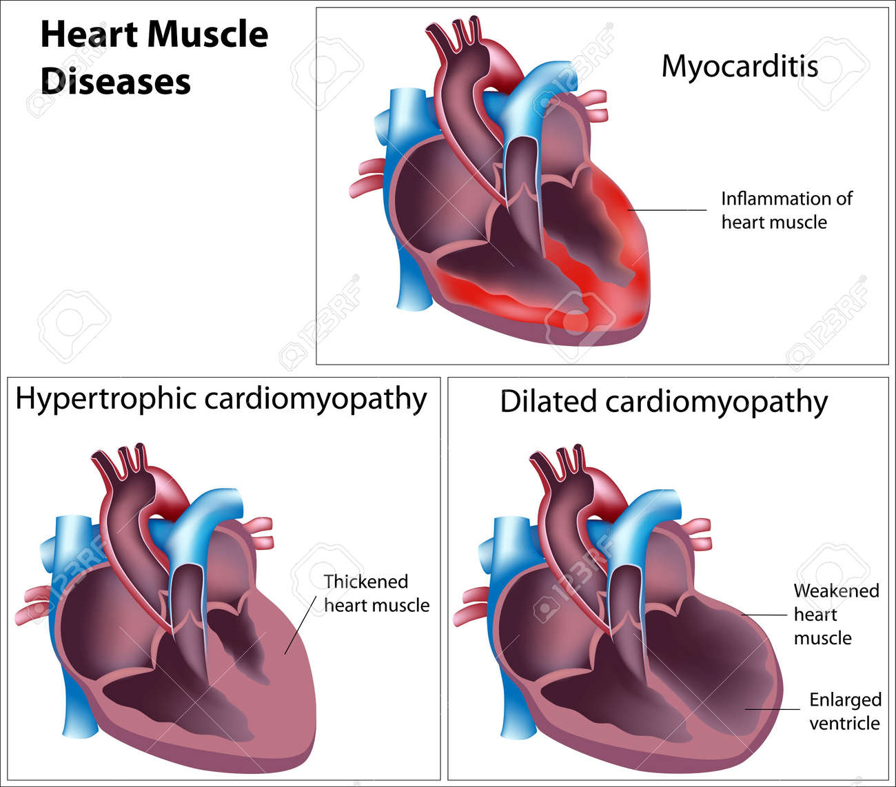 Diseases of heart muscle, eps8 Stock Vector - 11122408