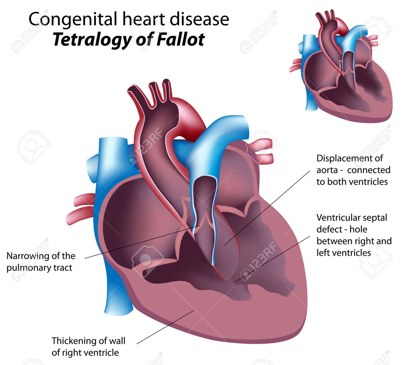 Congénita enfermedad cardíaca