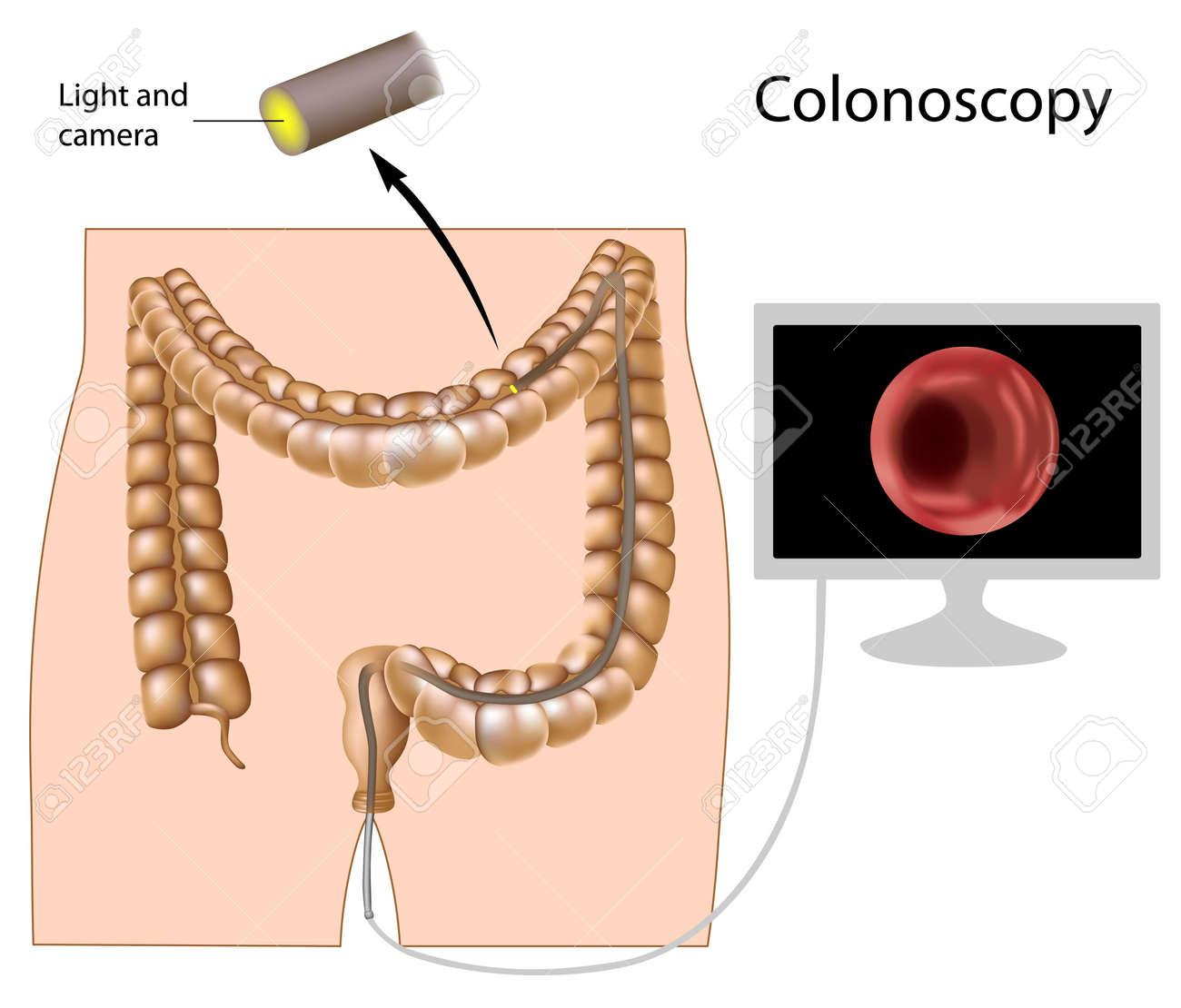 Colonoscopy procedure Stock Vector - 11271330