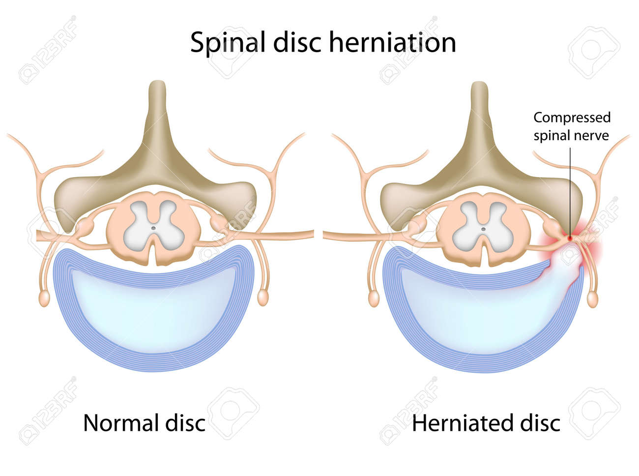 Spinal disc herniation Stock Vector - 11271336