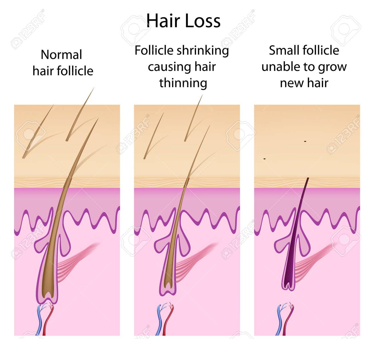 Hair loss process Stock Vector - 11271332