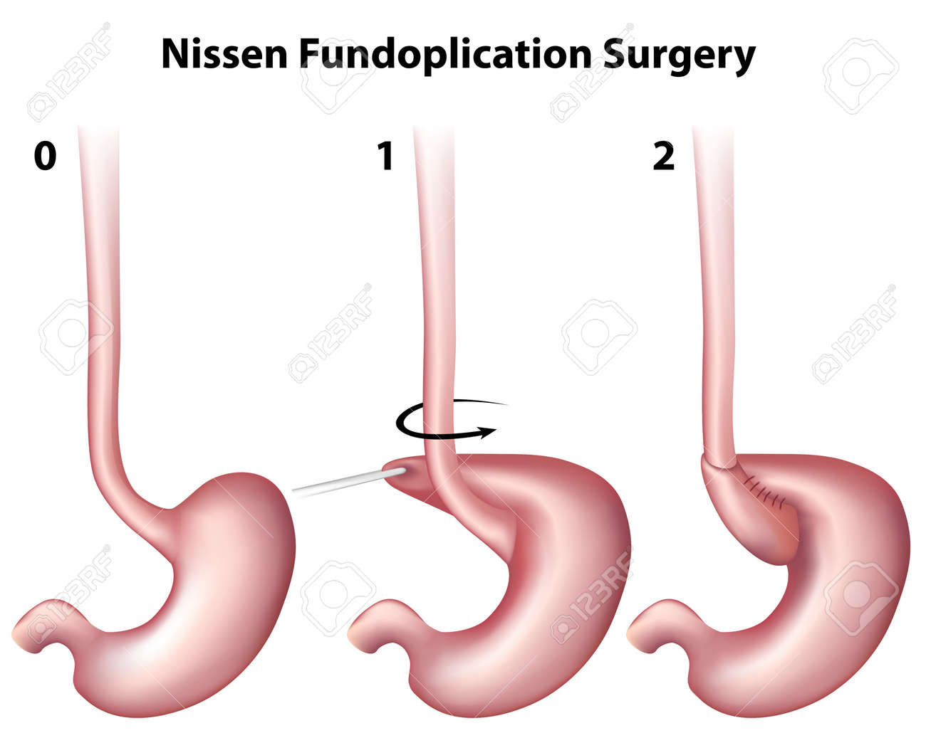 Nissen Fundoplication Surgery Royalty Free Cliparts, Vectors, And ...