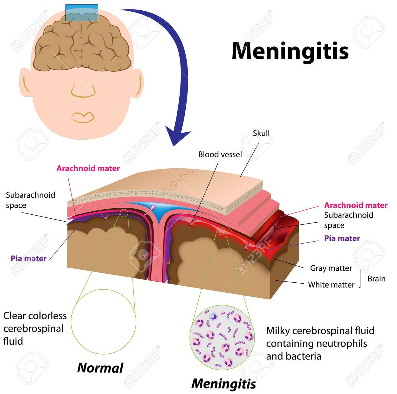 Meningitis Stock Vector - 11347638
