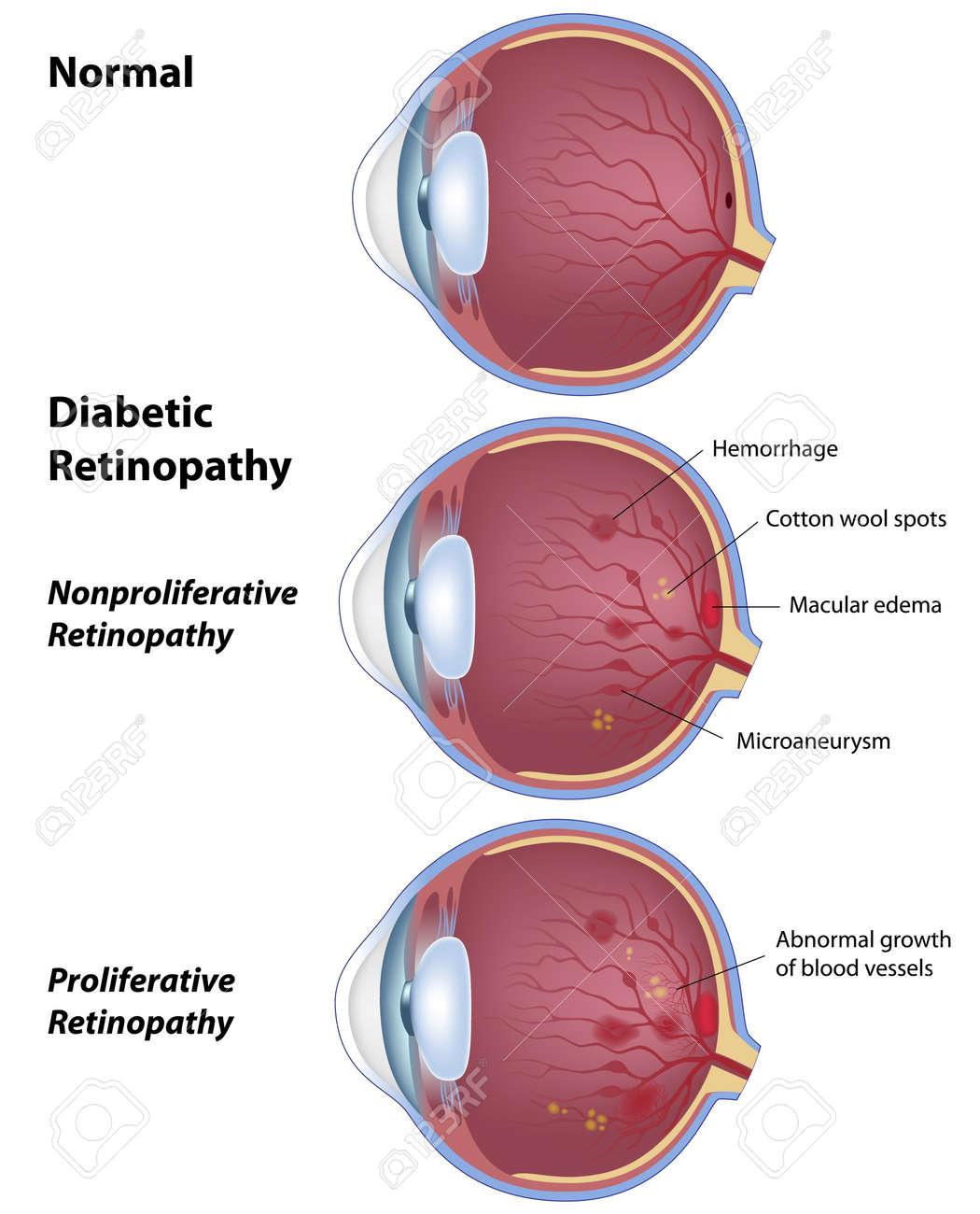 Diabetic retinopathy, eye disease due to diabetes Stock Vector - 11578735