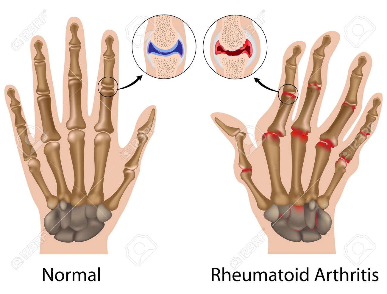 Reumatoïde Artritis Van De Vinger Gewrichten Van De Hand Royalty ...