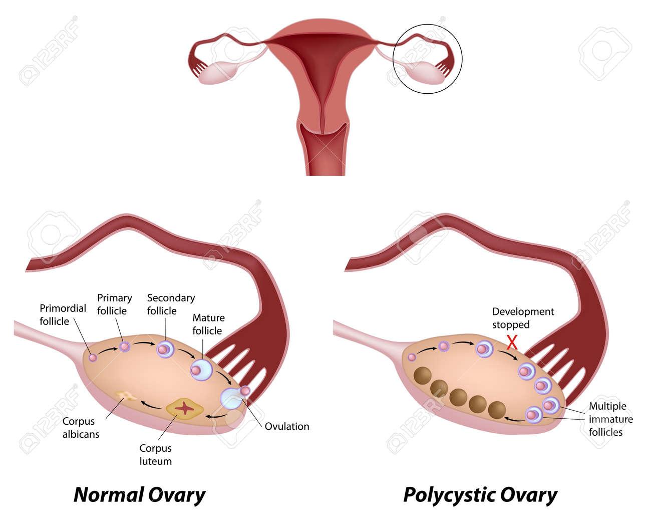 通常の卵巣と多嚢胞性卵巣症候群...
