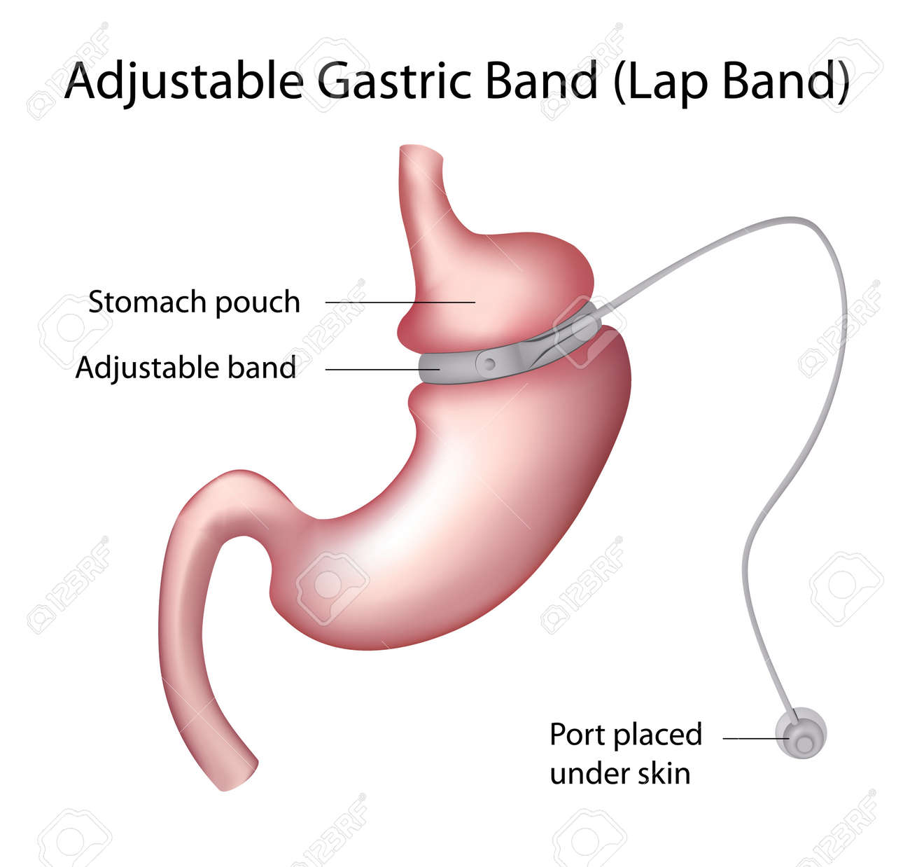 Gastric Band Weight Loss Surgery Royalty Free Cliparts Vectors And