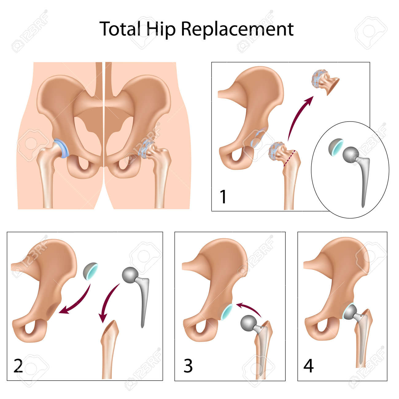 Total Hip Replacement Surgery Royalty Free Cliparts, Vectors, And ...