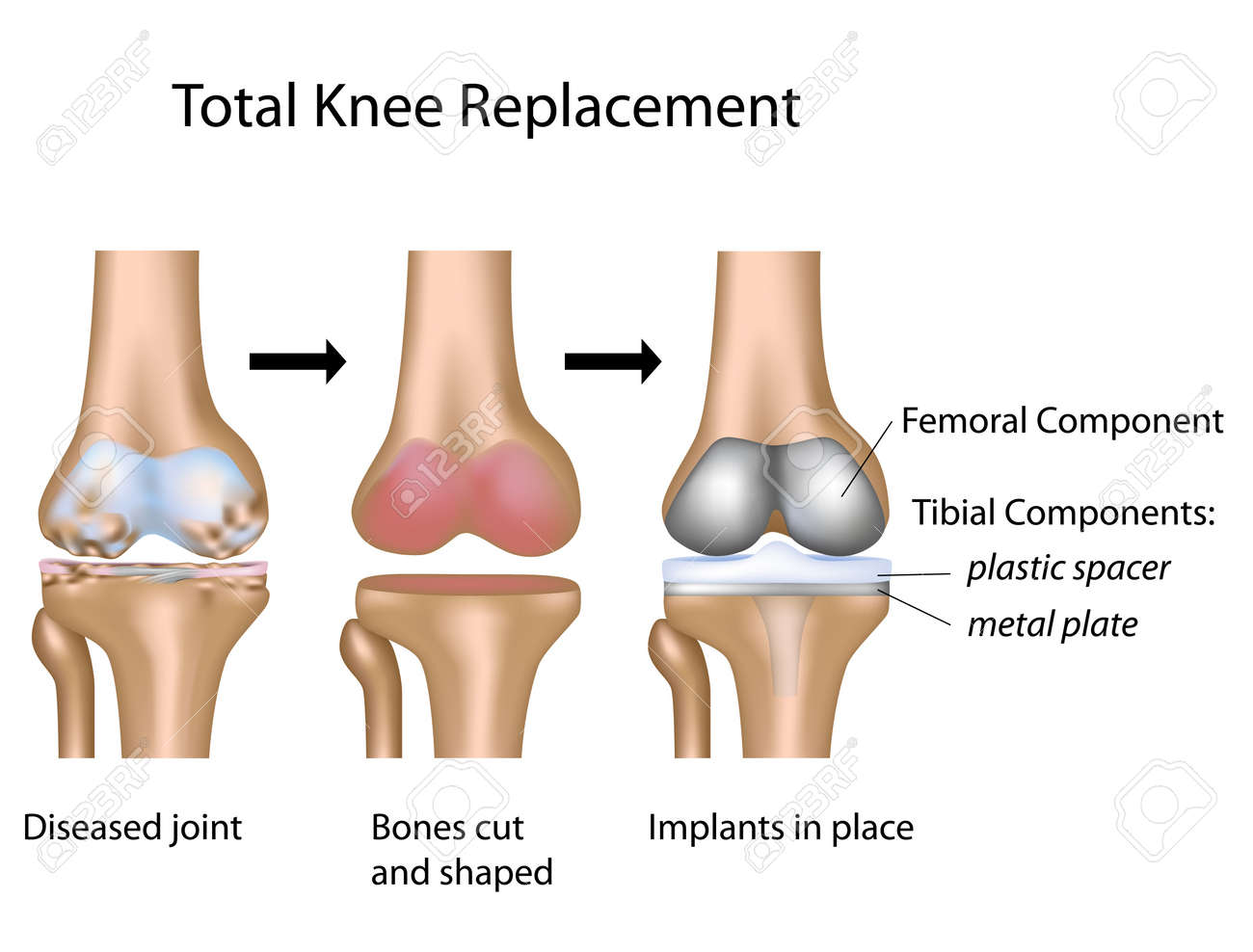 Total knee replacement surgery Stock Vector - 12176795