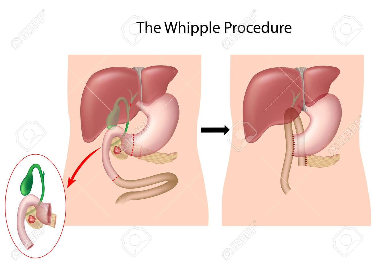 El Procedimiento De Whipple Para El Tratamiento De Cáncer De ...