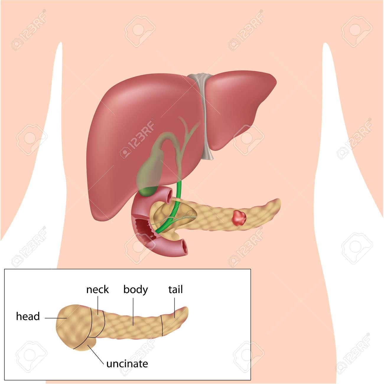 Bauchspeicheldrüsenkrebs Lizenzfreie Fotos, Bilder Und Stock ...