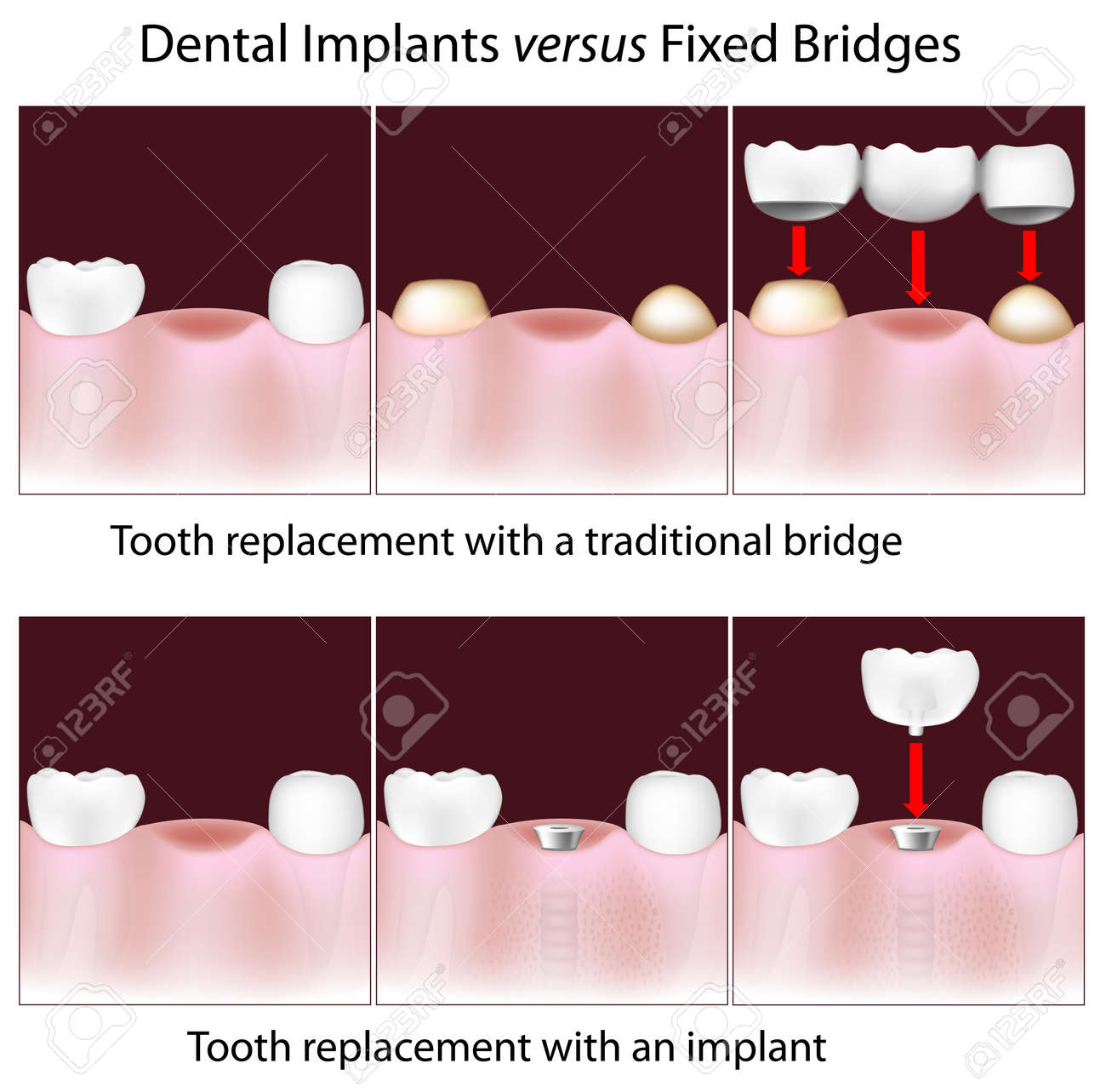 Dental implants versus fixed bridges Stock Vector - 15313016