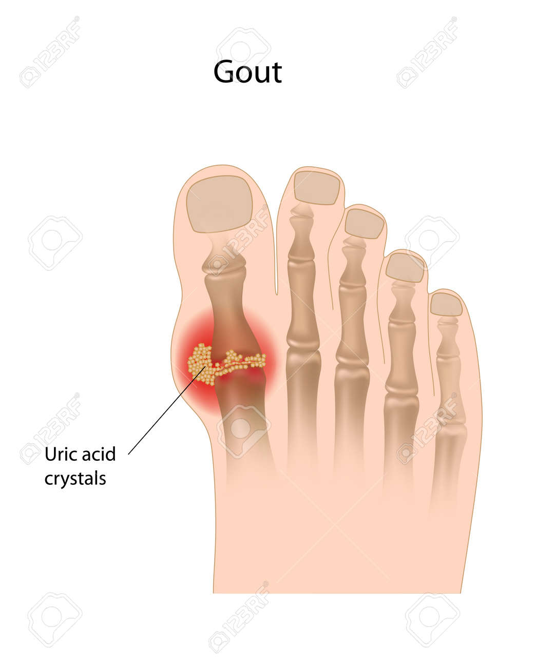 holistic cures for gout could i have gout in my big toe gout or arthritis in big toe joint