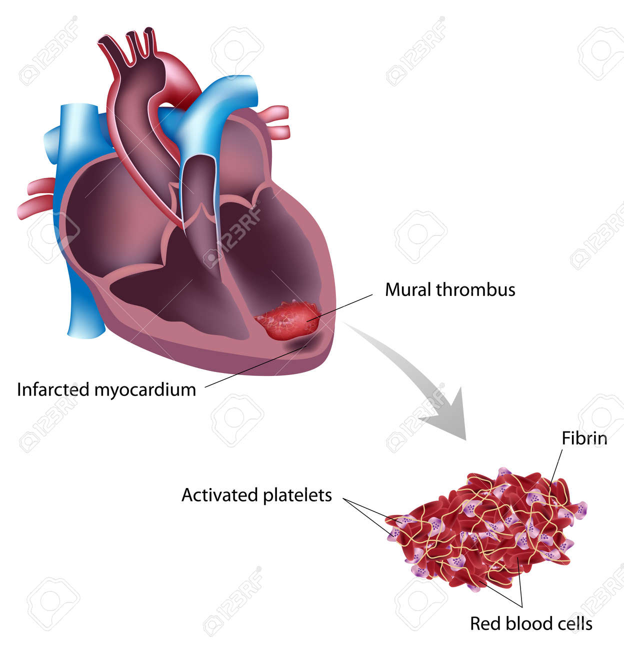 mural thrombus after heart attack royalty free cliparts, vectors, Muscles