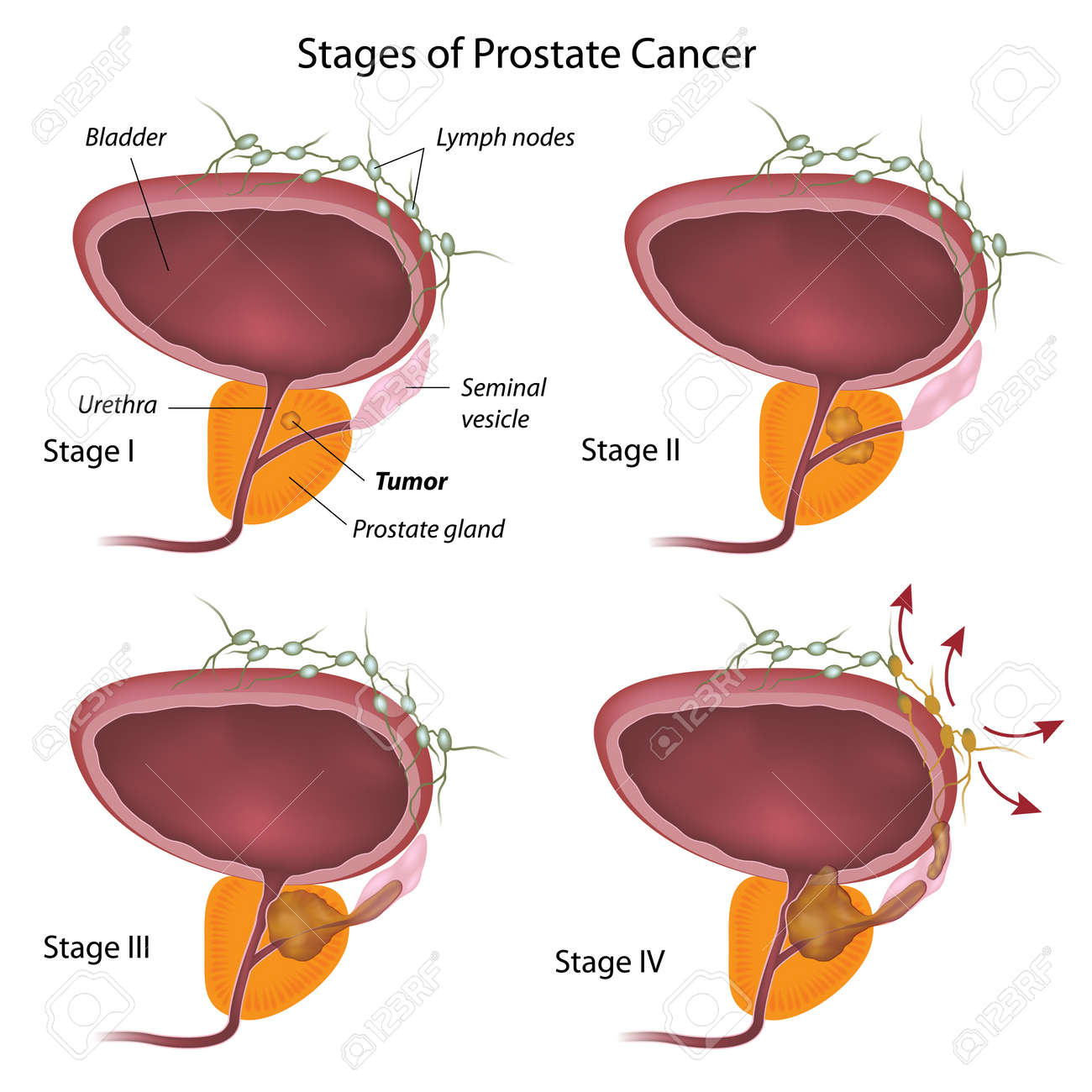 Stages of prostate cancer - 16189453