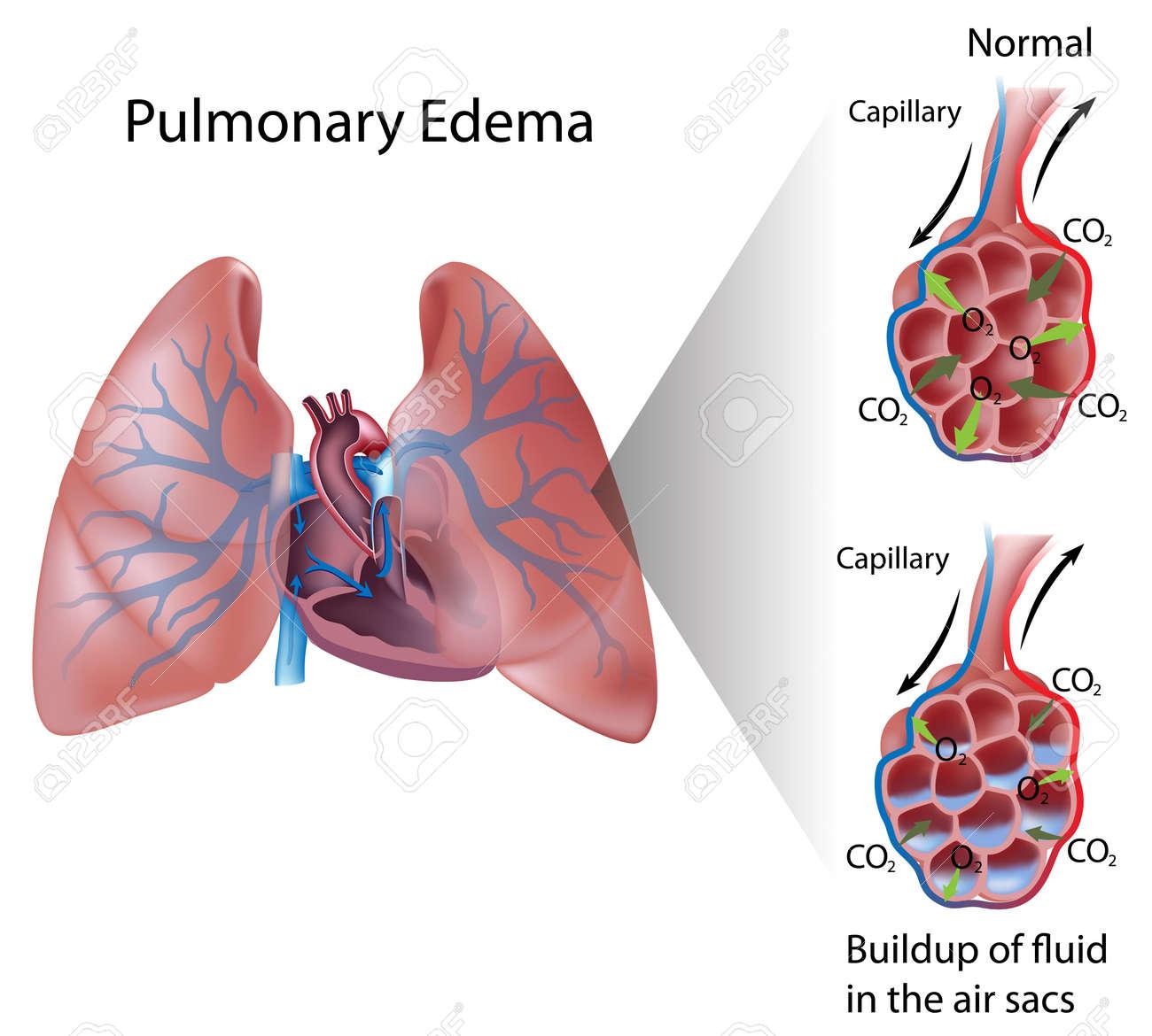 Pulmonary edema - 16189458