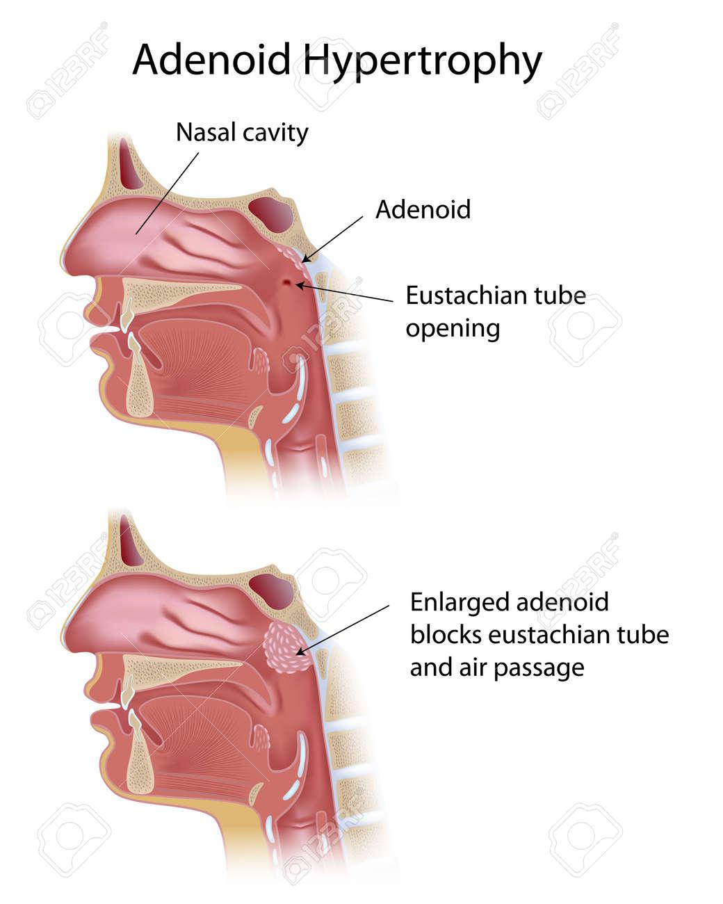 Adenoid hypertrophy - 16437398