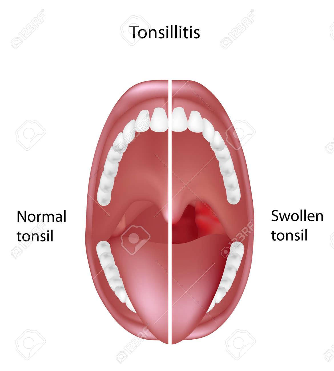 Tonsillitis - 16695573