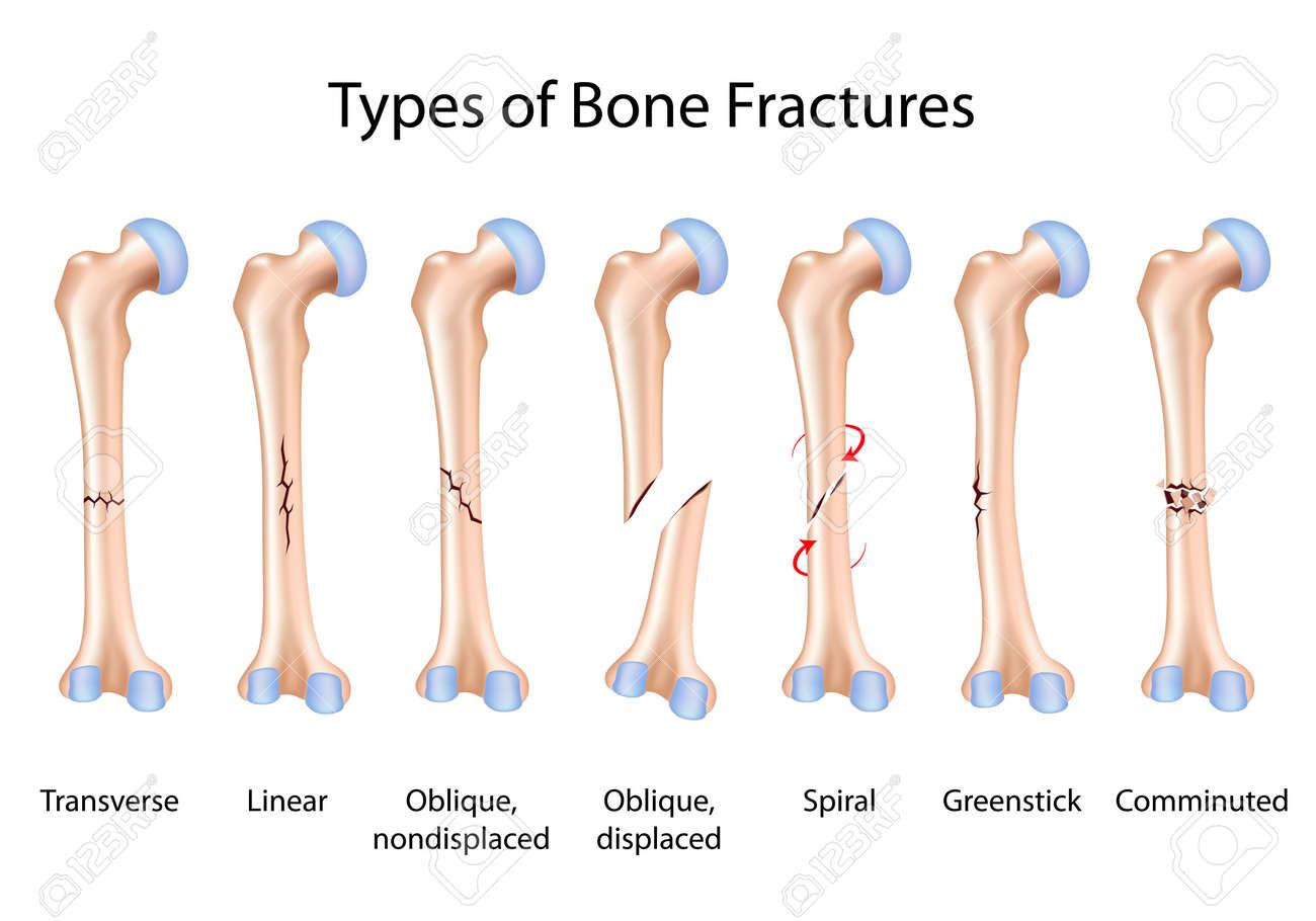 Types of bone fractures - 16801387
