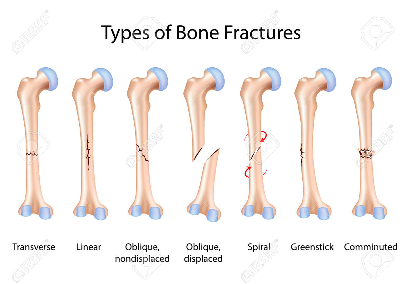 Types Of Bone Fractures Royalty Free Cliparts Vectors And Stock