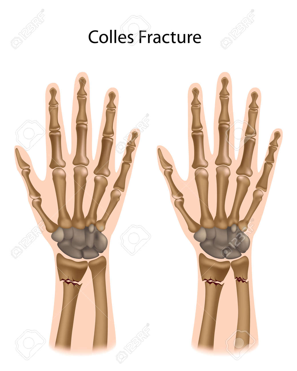Colles fracture - 16801388
