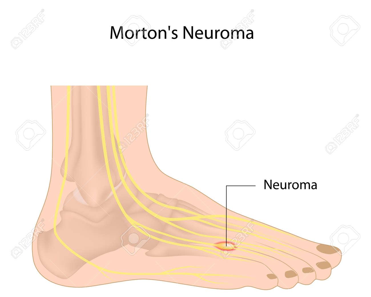 Morton neuroma Stock Vector - 16911785