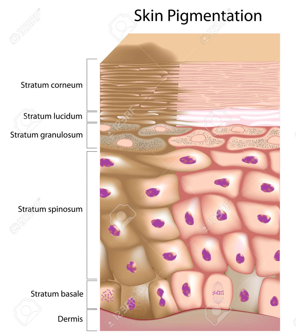 Formation of uneven skin tone - 17432854