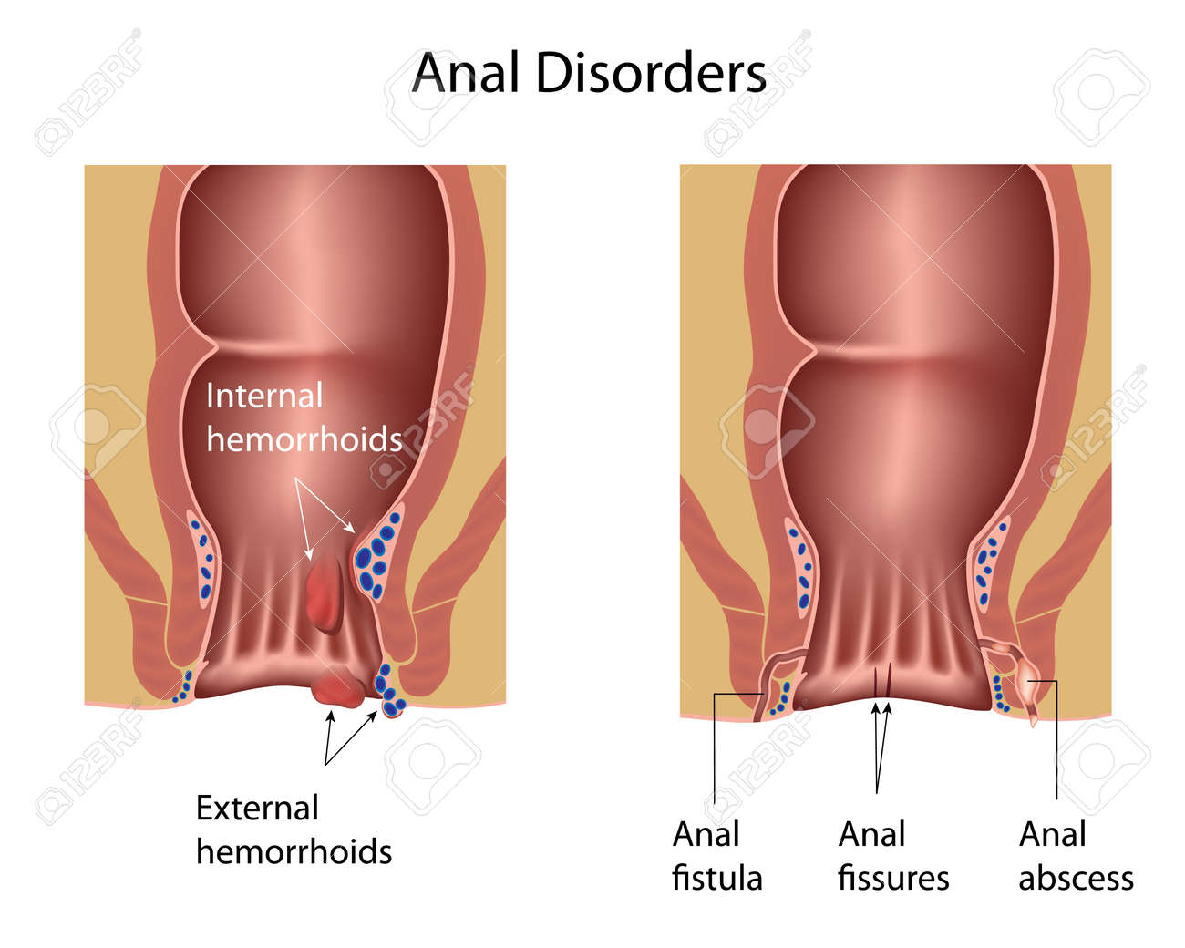 Anal disorders - 17588313
