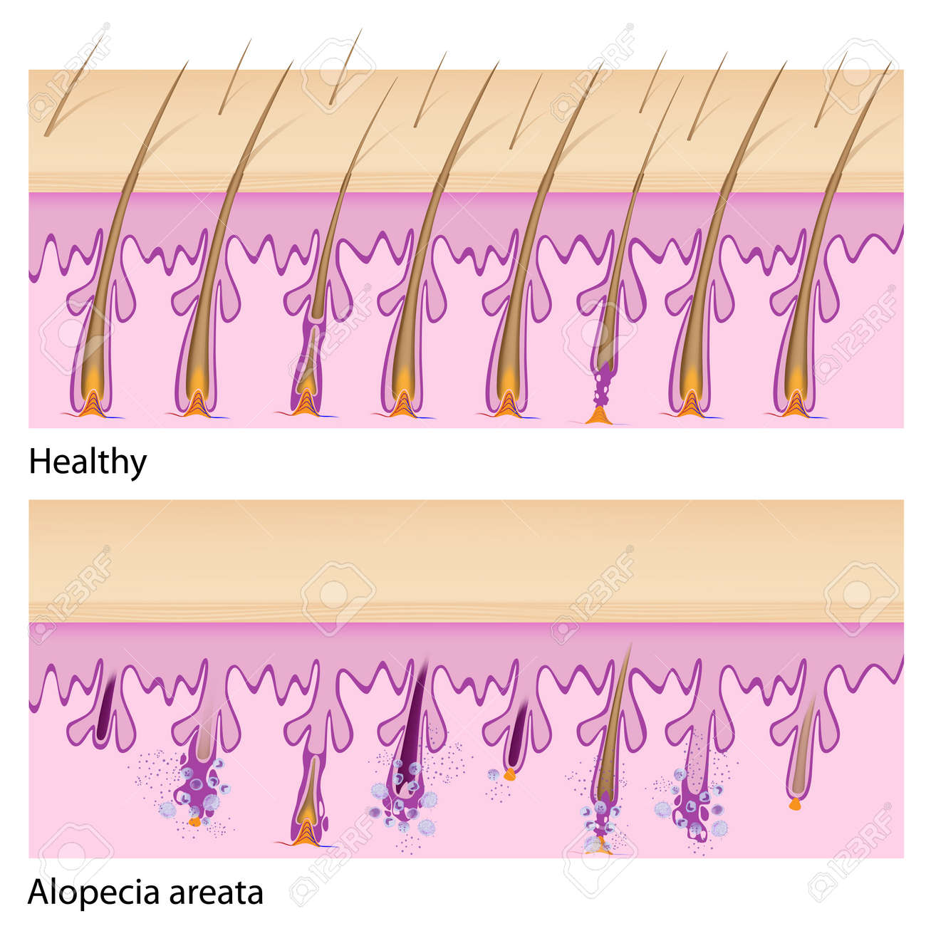 normal hair and alopecia areata royalty free cliparts, vectors, and Names and Body Part Diagram normal hair and alopecia areata stock vector 17588318