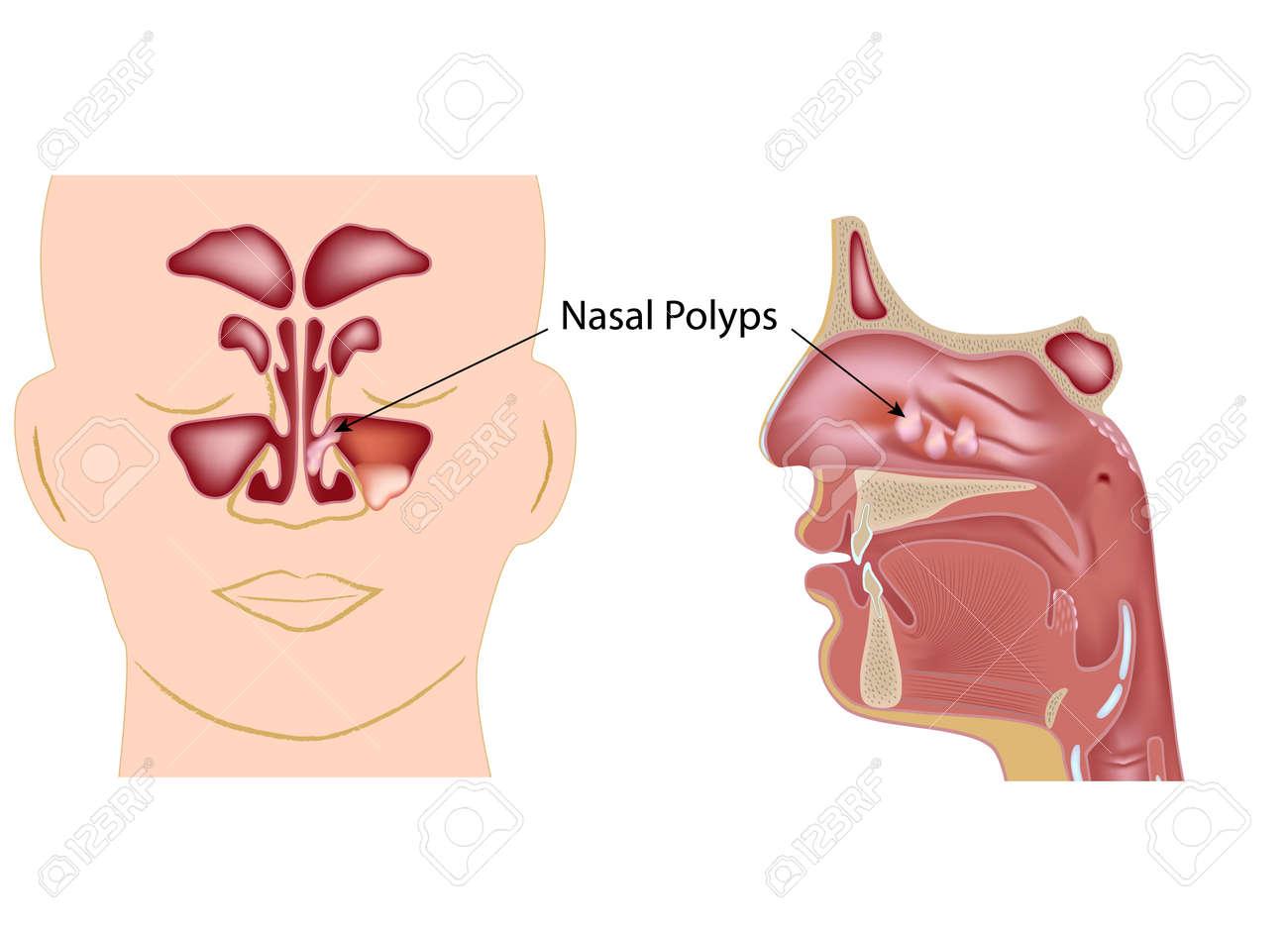Nasal polyps Stock Vector - 17588317