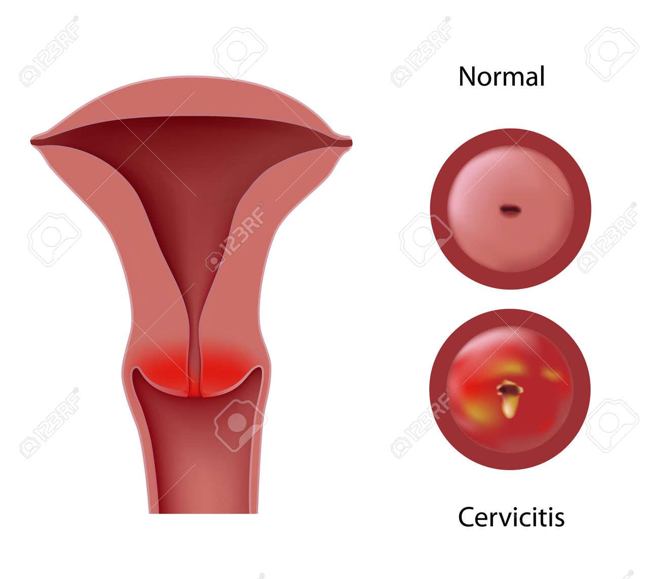Cervicitis - 17754251