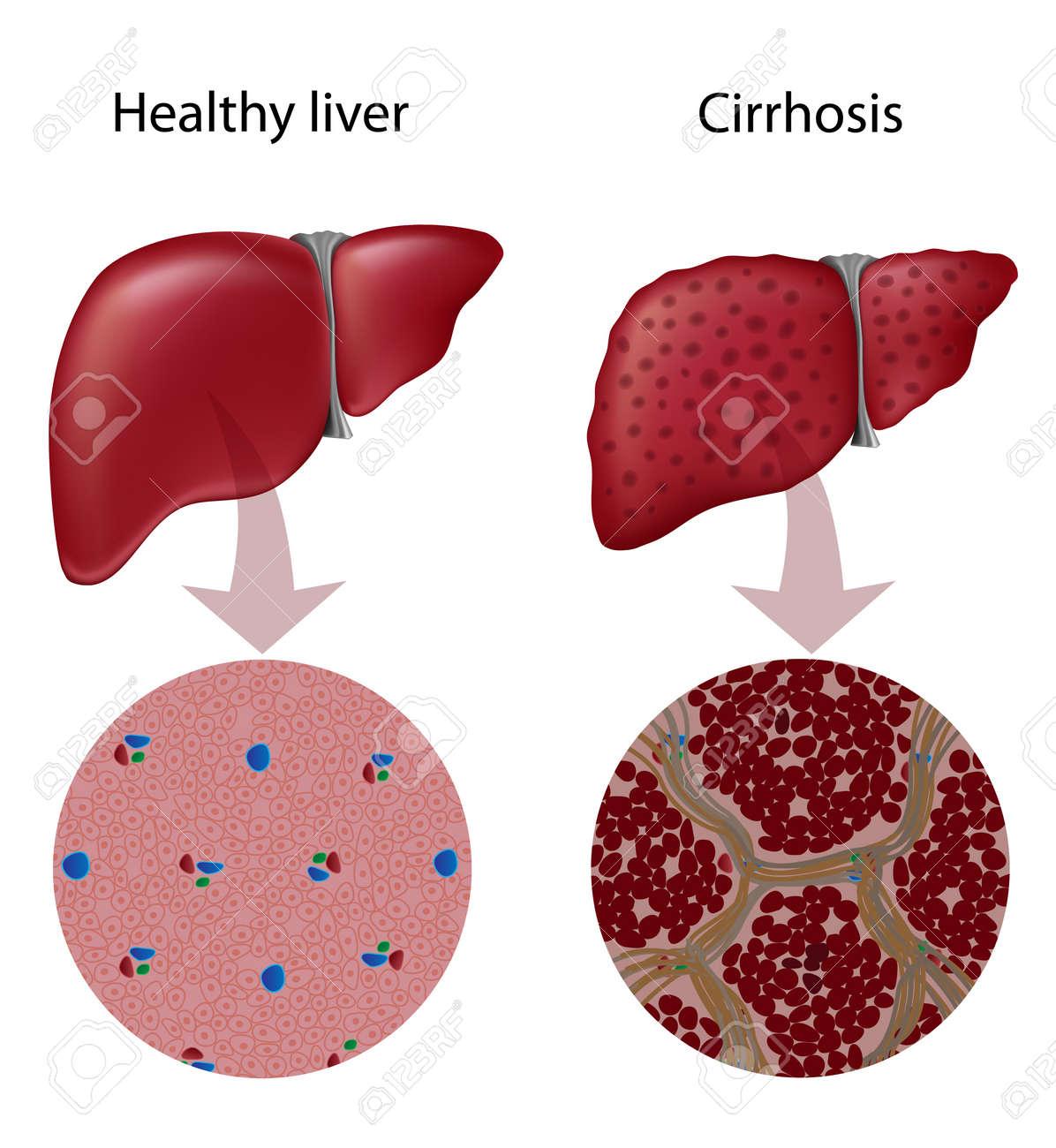 Liver Cirrhosis Stock Vector - 17754257