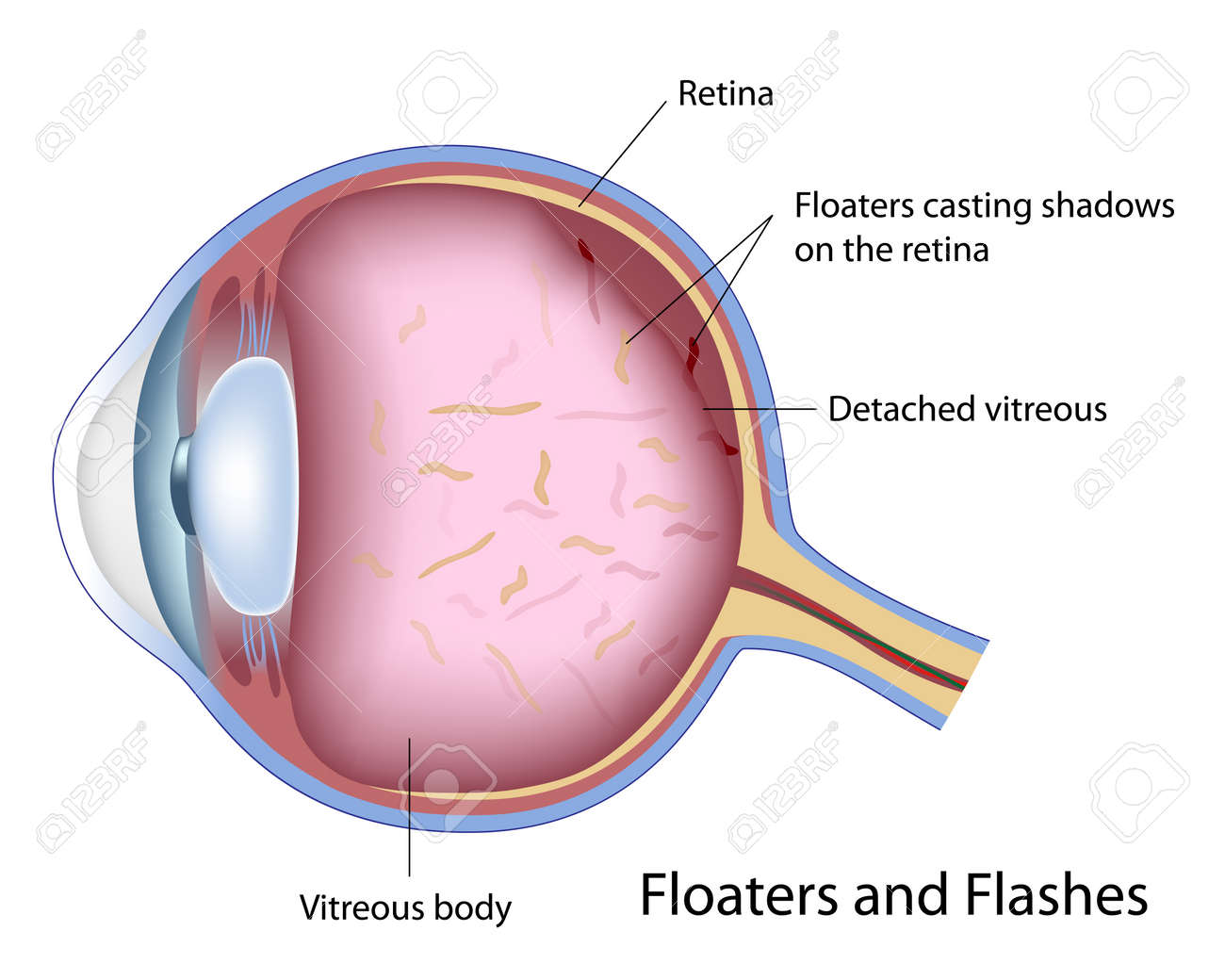 Floaters and Flashes Stock Vector - 17920229
