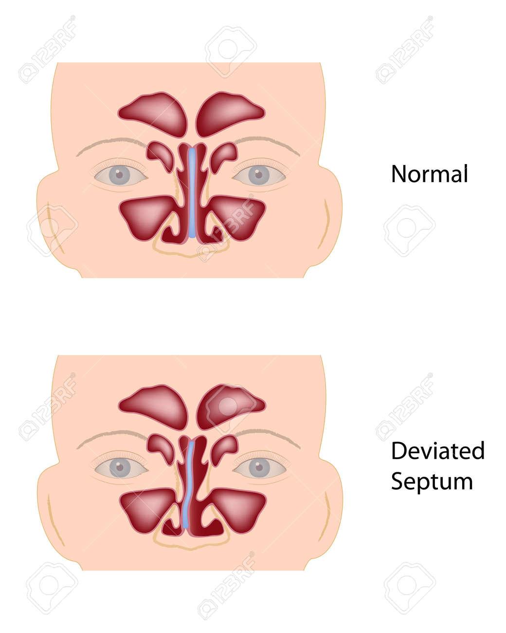 Deviated nasal septum - 17920231
