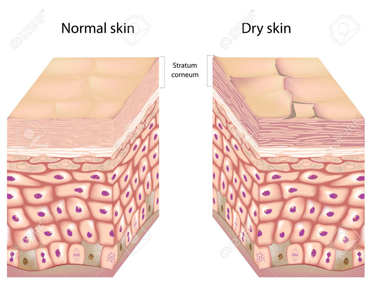 Dry skin - 17920240