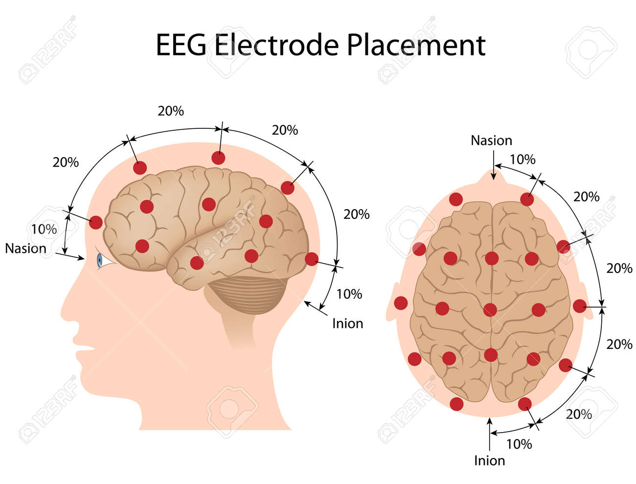 eeg electrode placement royalty free cliparts vectors and stock