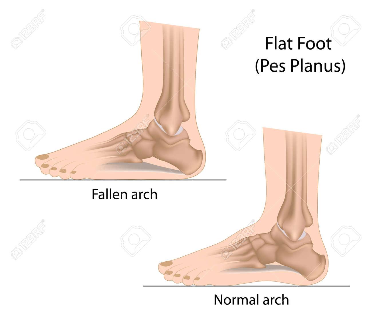 Flat Foot - 18111275