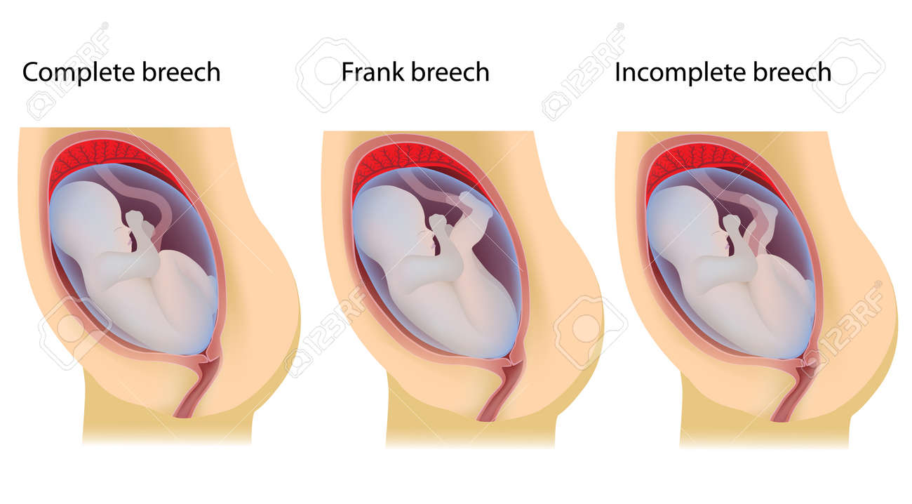 Types of breech birth positions stock photo picture and royalty types of breech birth positions stock photo 24748925 ccuart Choice Image