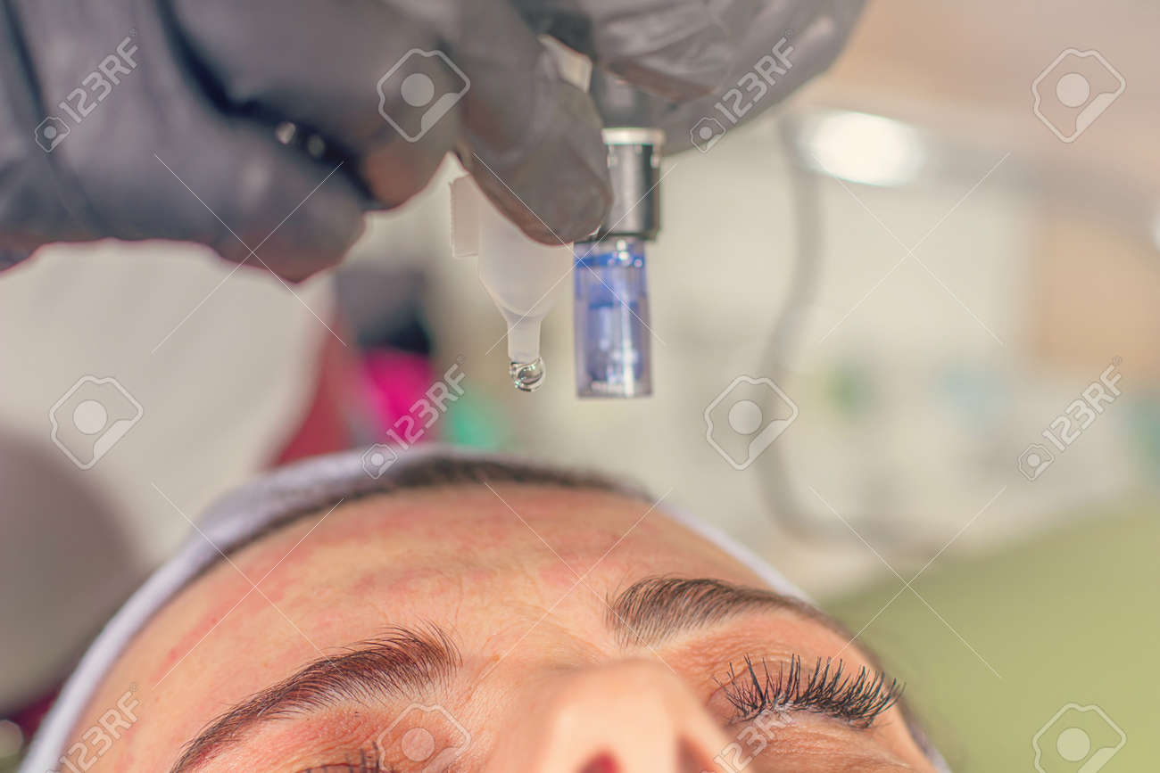Needle mesotherapy treatment on a woman face. - 97795015